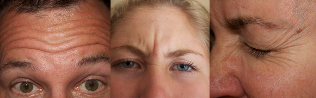 Expression wrinkles causes by our facial muscle movements in forehead, between the eyes and crows feet