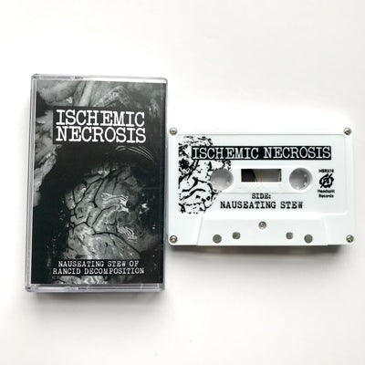"Ischemic Necrosis - ""Nauseating Stew of Rancid Decomposition"""