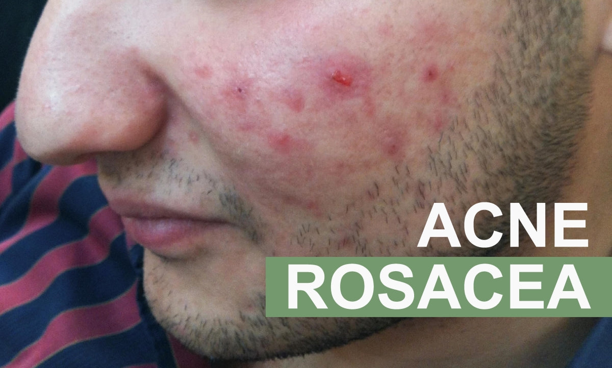 Picture of a man with acne rosacea before using Marvesol Rosacea Aftercare cream