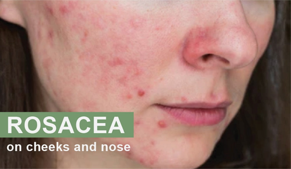 rosacea on cheeks and nose