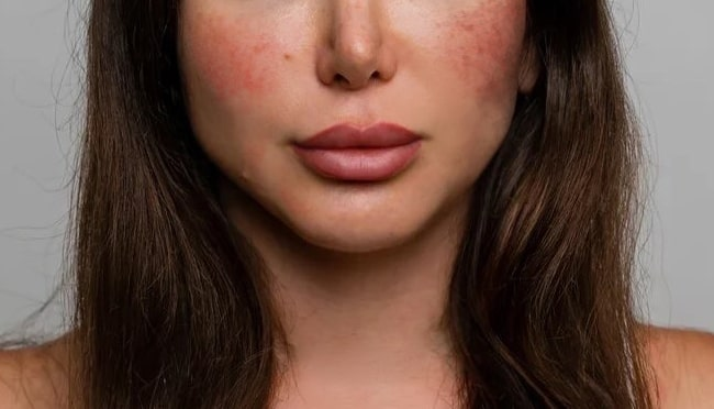 rosacea redness on checks