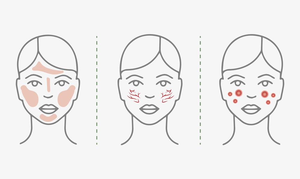 Places where rosacea appears on the face