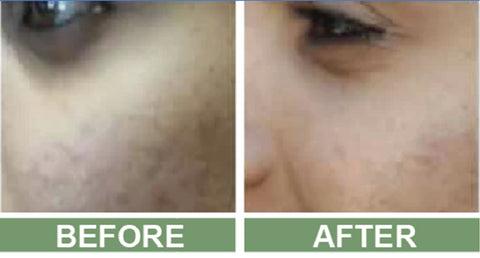 Rosacea pictures before and after the use of Marvesol rosacea after care cream
