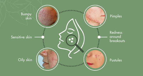 infor graphic to teach you how to identify acne rosacea