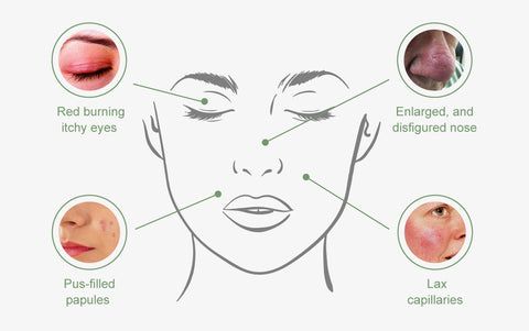 infographic showing Acne rosacea symptoms like enlarged nose, pus filled papules, red burning itchy eyes, and lax capilaries