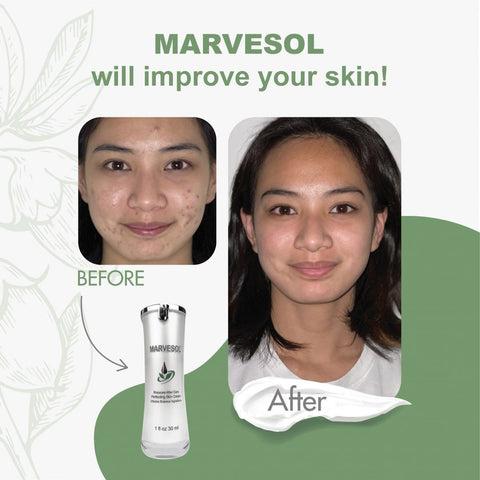 Before and after using Marvesol