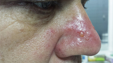 rosacea on the nose (rhinophyma)
