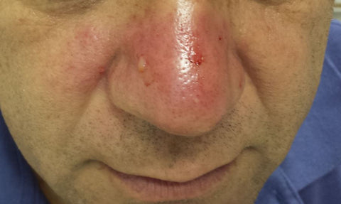 Rosacea on the nose