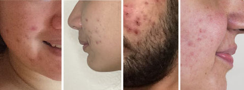 rosacea on different skin types