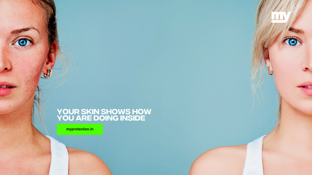 Your skin shows how you are doing inside