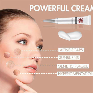 Face Freckle Removal Cream