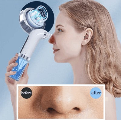 blackhead-remover-pore-deep-cleaner-before-after-effect-new-skin