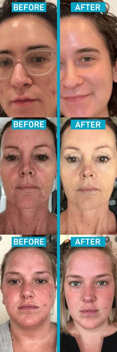 naturalhydroskin-high-frequency-therapy-wand-kit-before-after