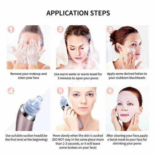 Electric Facial Skin Care Pore Blackhead Remover Cleaner Vacuum Acne Cleanser - Chaba Online Store