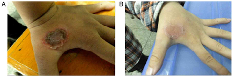 patient hand with large sore - before and after ozone therapy
