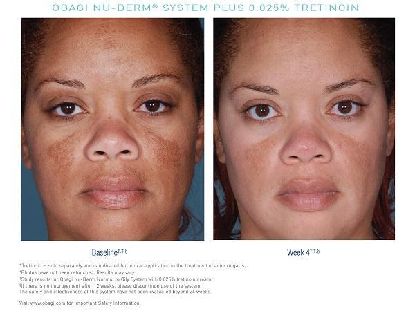Obagi NuDerm Trial Kit Norm/Dry