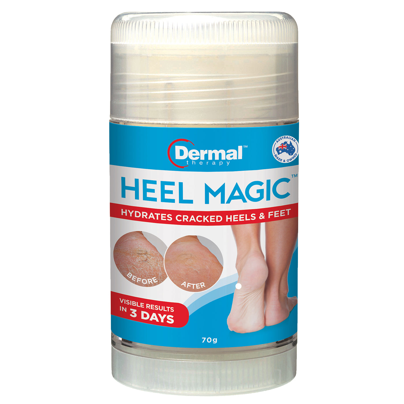 Dermal Therapy Roll On Heel Magic 70g|Before & After Shot Of Skin Following Dermal Therapy Heel Magic Treatment