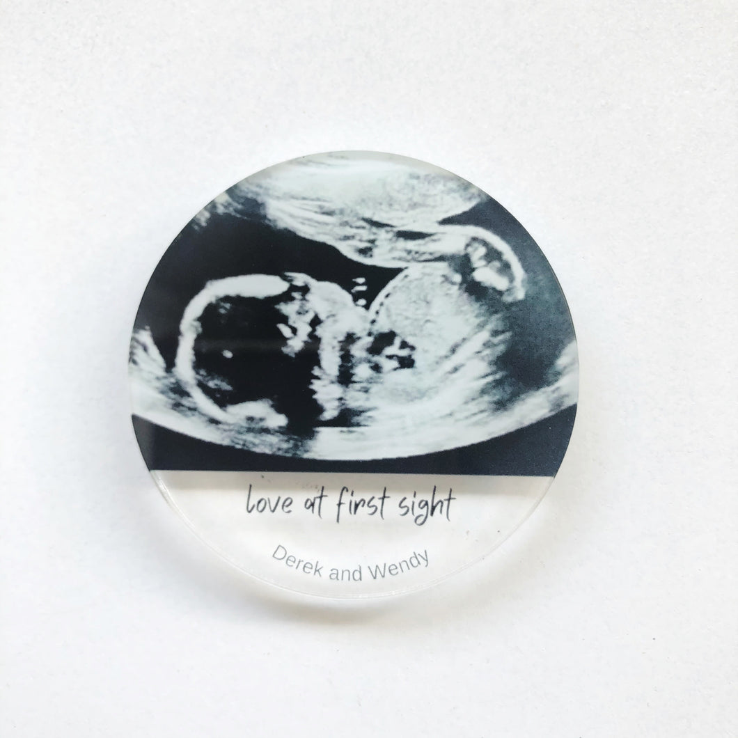 Personalised Sonagram Ultrasound Baby Scan Keepsake Fridge Magnet Keychain