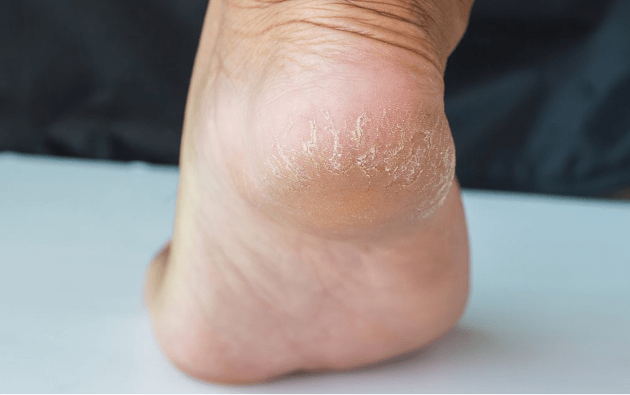 What really causes dry cracked heels & how do I treat them? | Betterman
