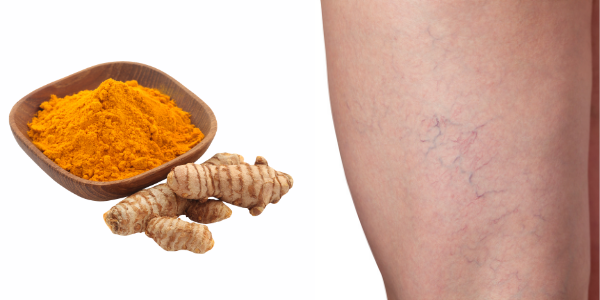 Treating Varicose Veins with Turmeric