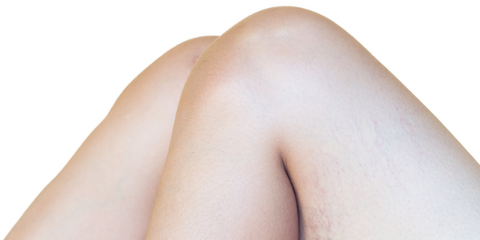 Why Your Leg Feels Like It Is Burning Up? Burning Leg Sensation Explained