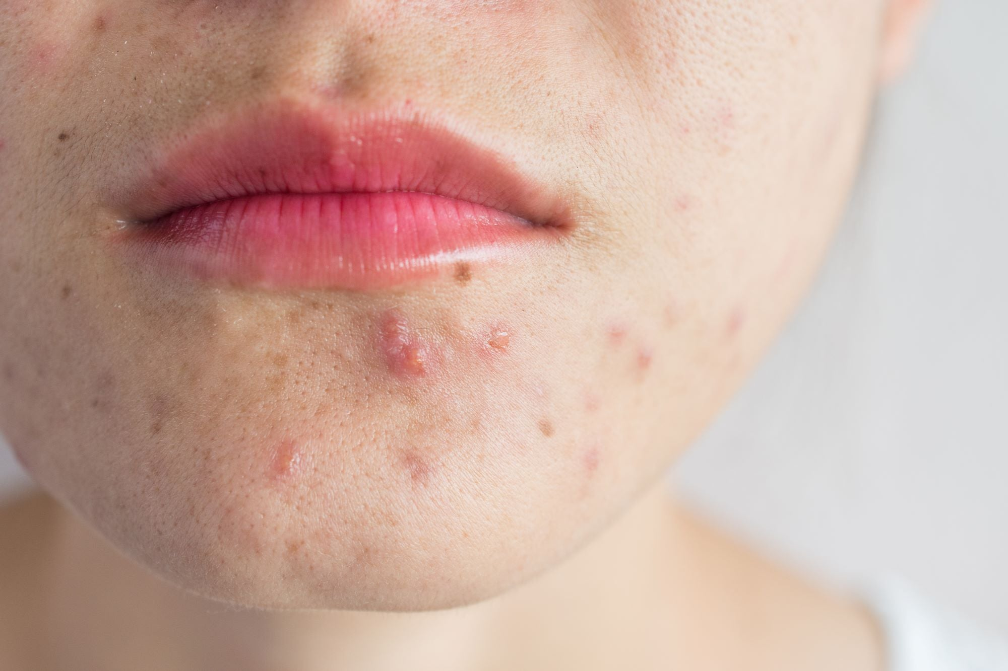 Natural Acne + Acne Scars Treatment Products For Teens And Adults