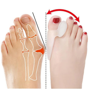CORRECTOR BONE TOES OUTER APPLIANCE