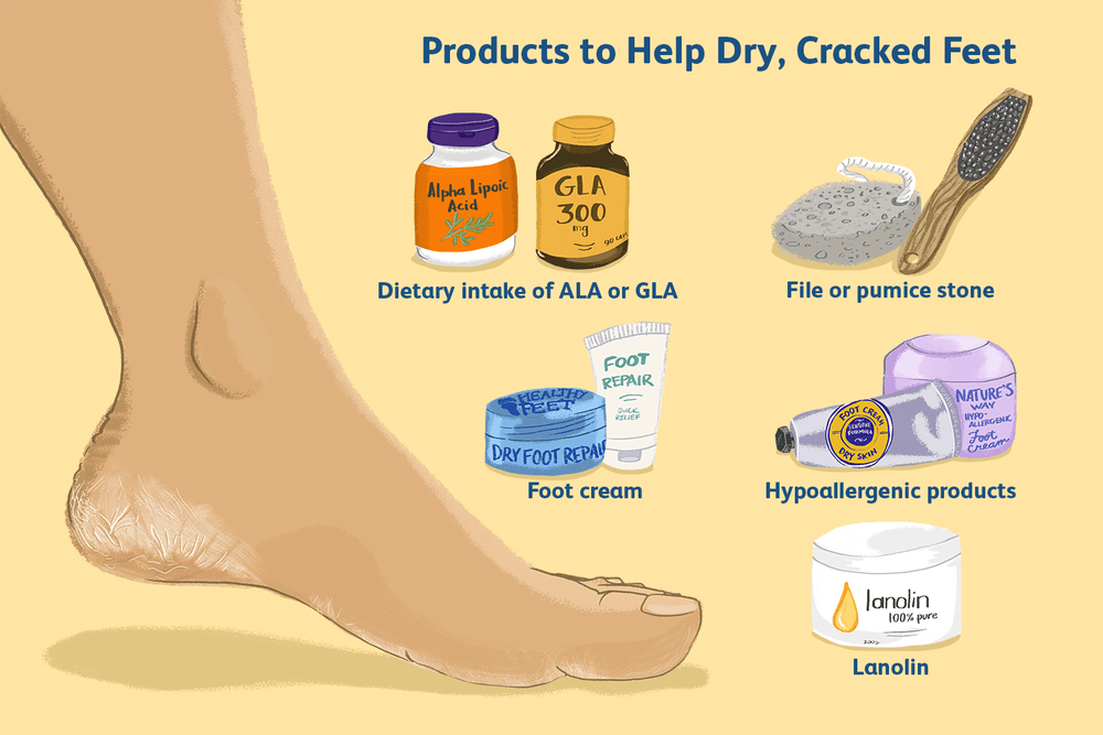 9 Great Ways to Repair Cracked Heels