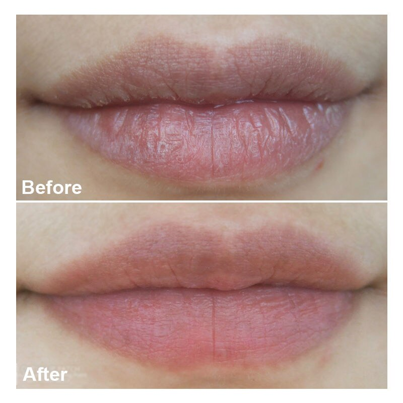 [Tonymoly] KISS KISS LOVELY LIP PATCH Serum-packed Hydrogel Moisturizes Plumps Lips