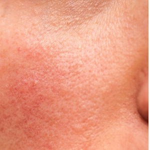 Rosacea Awareness Month - 10 Holistic Ways to Manage Rosacea