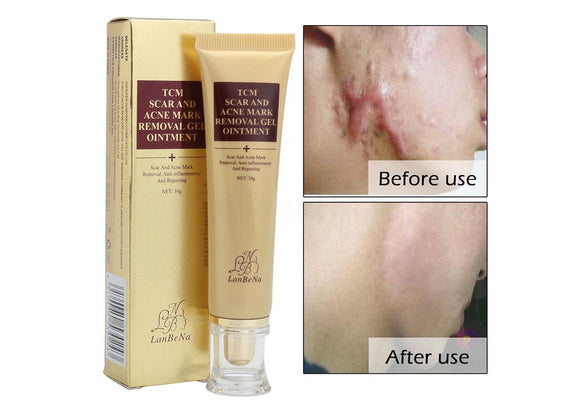 TCM SCAR AND ACNE MARK REMOVAL GEL OINTMENT