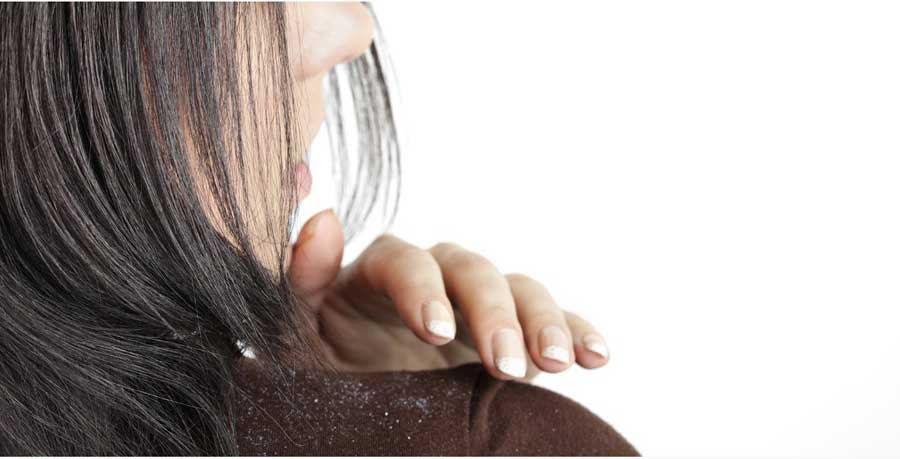 how-to-remove-dandruff-from-hair-permanently-at-home