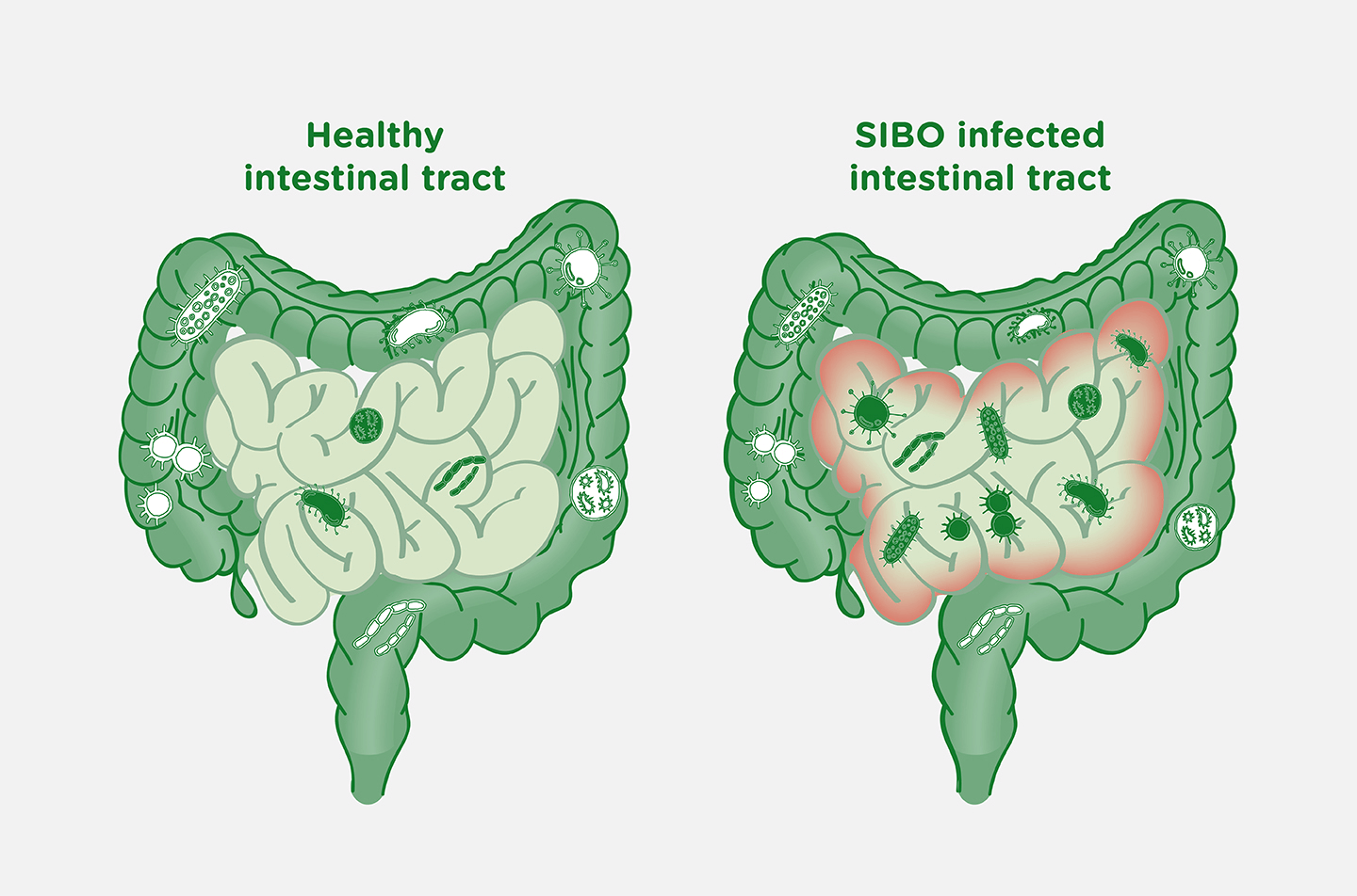 SIBO: How Small Intestinal Bacterial Overgrowth Impacts Your Microbiome & Your Overall Health