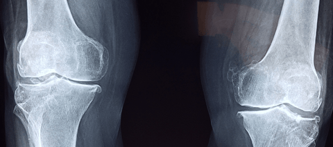 Xray of knee joints
