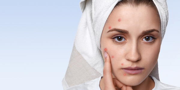 Dairy products cause acne