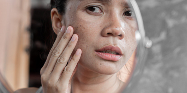 effects of sun exposure to skin