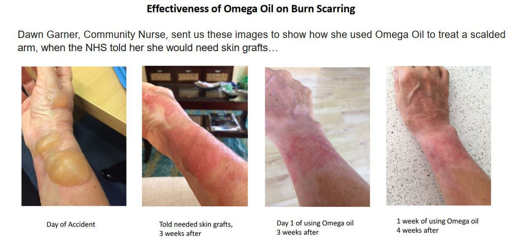 How Botanico Vida's Omega Oil can help the skin to recover after a burn