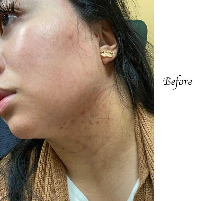Load image into Gallery viewer, Real Client Collection: Acne and Irritation