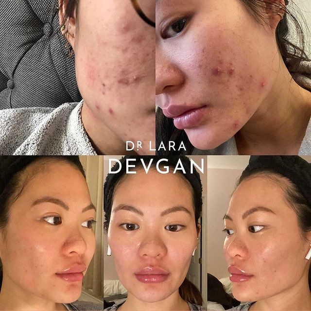 Real Client Collections: Acne and Acne Scarring