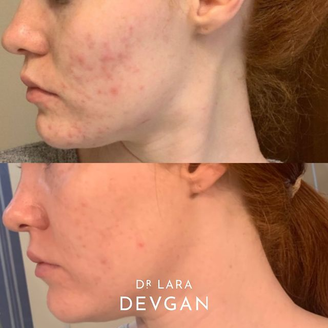 Real Client Collection: Minimalist Acne Treatment