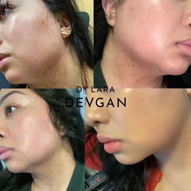 Real Client Collection: Acne and Irritation