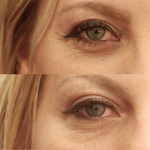 Before and after showing reduction of fine lines after using eye cream