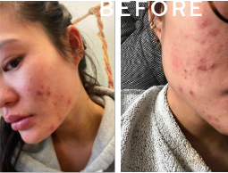 Load image into Gallery viewer, Real Client Collections: Acne and Acne Scarring