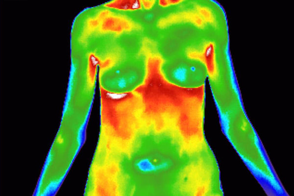 Early Detection Through Breast Thermography