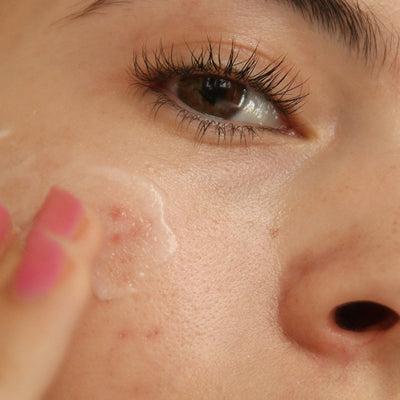 what are acne-causing ingredients?