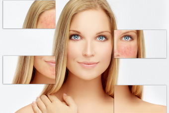 ROSACEA: THE NATURAL AND HEALTHY WAY TO TREAT IT