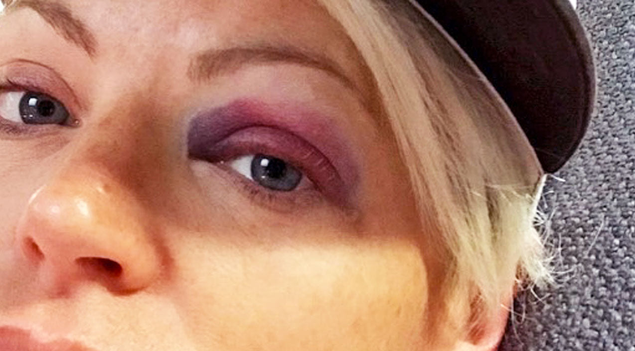 Natalie maines Songs | Dixie Chicks' Natalie Maines Shares Painful Photos Of Black Eye | Country Music Videos
