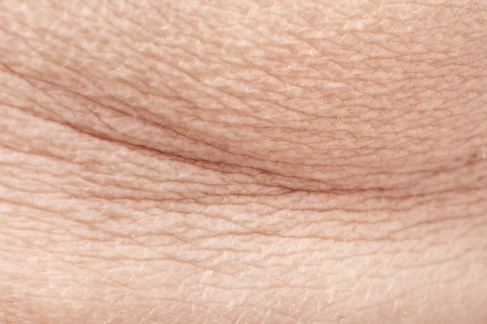 the skin to lose its elasticity