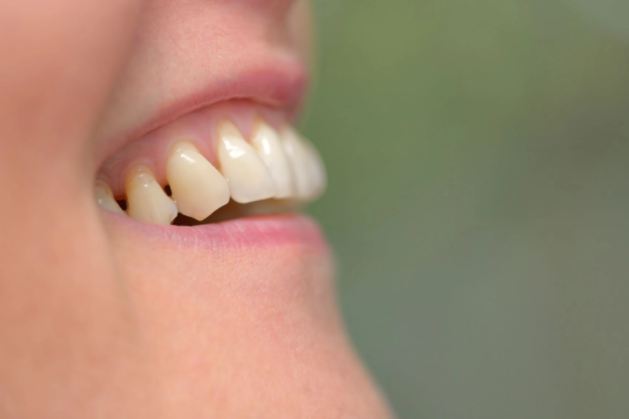 Why Healthy Gums are Important to Your Overall Health