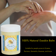 Load image into Gallery viewer, 100% Natural Exeskin Dry Skin and Scalp Balm - Prone To Eczema, Psoriasis, Dermatitis